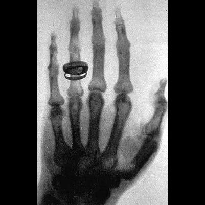 Röntgen descobriu o Raio X